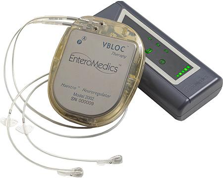 Maestro System, устройство для VBLOC-терапии