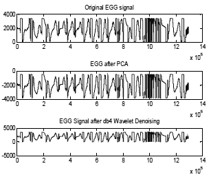 Fig. 3. Denoising of EGG signal with db4 wavelet transforms