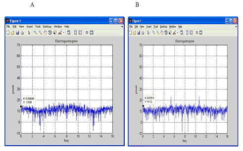 Figure 4: Electrogastrogram Analysis by FFT. A. FFT output for Normal subjects B. FFT output for abnormal subjects. Frequency in X-axis and Power in Y-axis