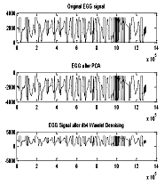 Figure 5. Denoising of EGG signal with db4 wavelet transforms