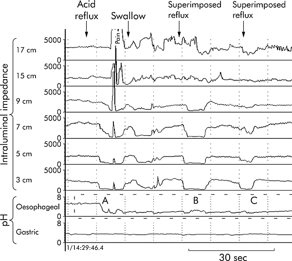 Oesophageal intraluminal impedance monitoring combined with oesophageal and gastric pH measurements (Sifrim D. elal, 2002)