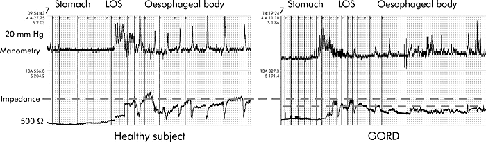 Tracings during a slow pull through of a combined manometric impedance catheter across the gastro-oesophageal junction